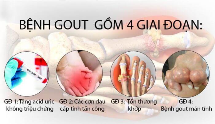 giai đoạn phát triển bệnh gout (gút)